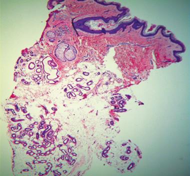 miradry histology 1